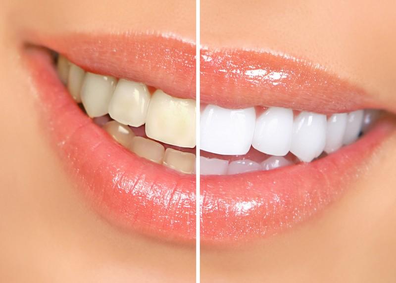 Teeth Whitening  Amarillo, TX
